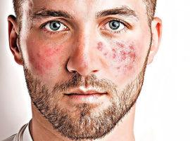 Победа над куперозом и покраснениями на лице